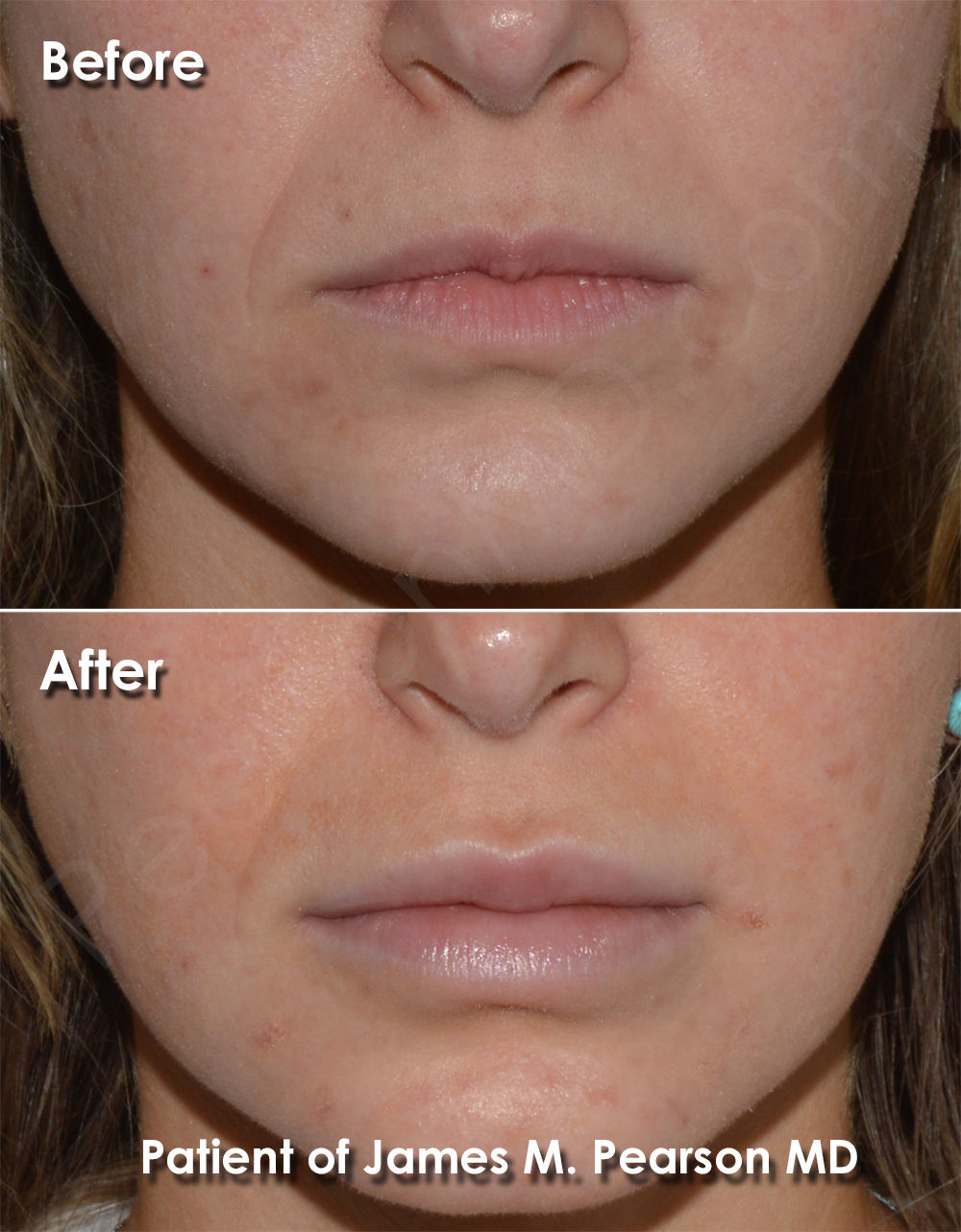 Hair Upper Laser Lip Removal