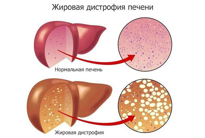 Жировая дегенерация костного мозга тел позвонков это