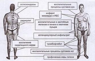 schema de producție a lipitorilor în varicoză