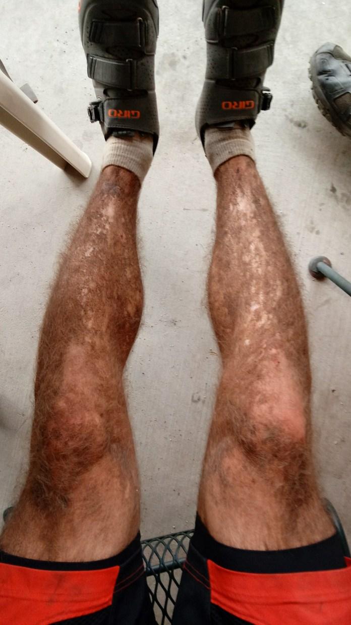 Leg dirt after 6 days = EPIC.