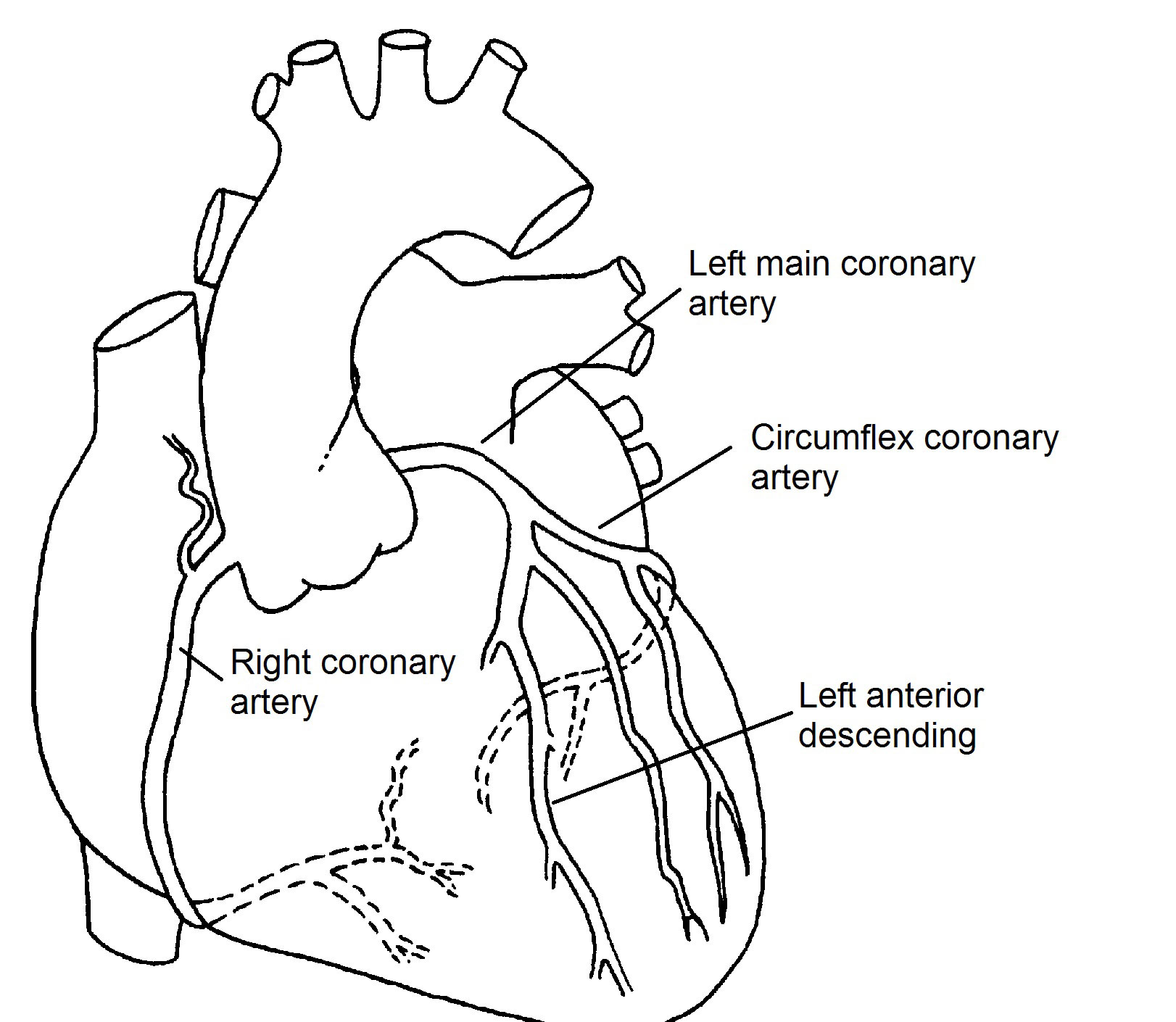 Normal Coronary Arteries