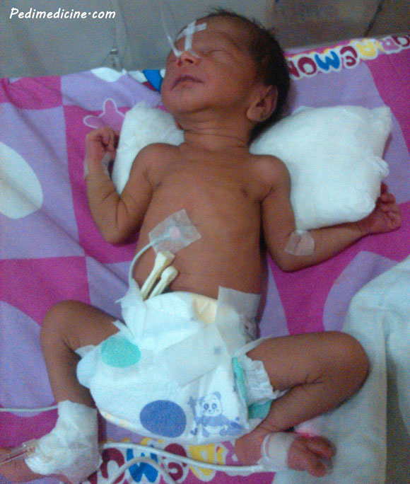 Respiratory Distress Syndrome in Newborn and Surfactant Therapy