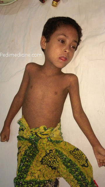 Measles Symptoms Pictures Vaccination Immunization and Prevention (2)