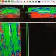 Blog #10 – De meerwaarde van beeldvormingstechnieken (deel 2: UTC en elastografie)