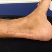 Blog #14 – Revalidatie na een scheur van de achillespees: opereren of niet?