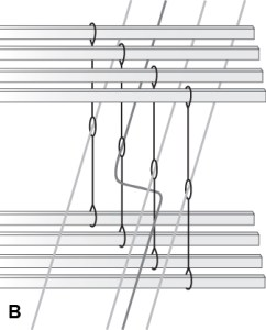 Weaving Error, Crossed Threads B