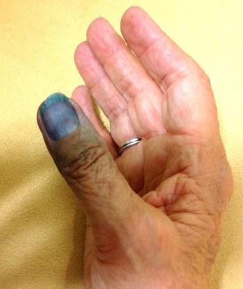 indigo Thumb