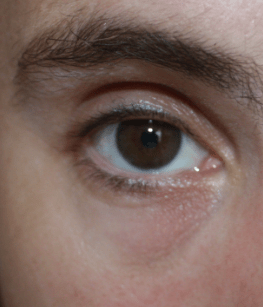 yeux7