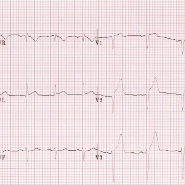 Anteroseptal STEMI: ST elevation is maximal in the anteroseptal leads (V1-4).Q waves are present in the septal leads (V1-2).There is also some subtle STE in I, aVL and V5, with reciprocal ST depression in lead III.There are hyperacute (peaked ) T waves in V2-4.These features indicate a hyperacute anteroseptal STEMI