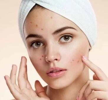 Tips Memilih Sunscreen Untuk Yang Mudah Berjerawat