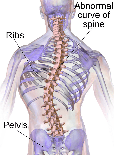 scoliosis myotherapy