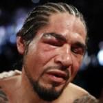 """Con el ojo derecho totalmente cerrado y recordando la escena del KO que recibió por parte de Manny Pacquiao, la derrota del """"Tornado de Tijuana"""" lo deja con récord de 38-9."""