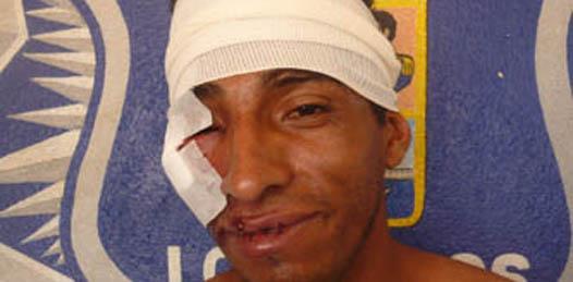 """Justicia ciudadana por mano propia, reflejo de que """"como autoridades estamos fallando"""": CEDH"""