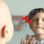cáncer en menores