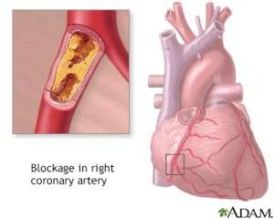 Heart Center  Penn State Hershey Medical Center  Cholesterol  Penn State Hershey Medical Center