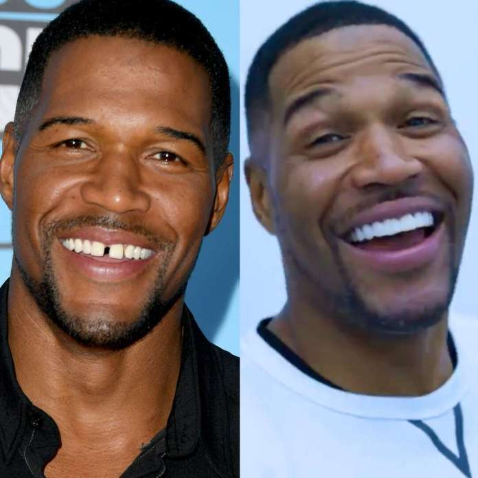 Michael Strahan Responds to Backlash Over His Tooth Gap Prank