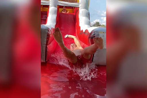 Lochte suffered the meniscus injury in an apparent inflatable water slide accident.