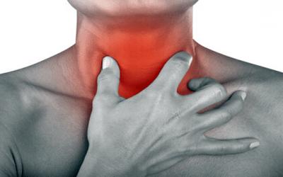 5 expectorantes para acabar com sua tosse