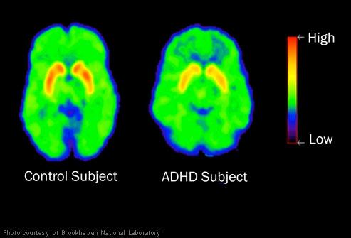 Creierul ADHD