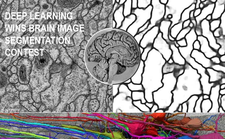 1 March 2012: Deep Learning Wins 2012 Brain Image Segmentation Contest