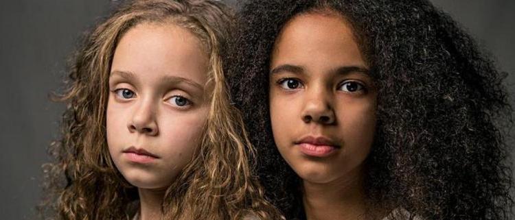 Δίδυμες διαφορετικού χρώματος δίνουν μήνυμα κατά του ρατσισμού