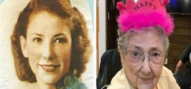 Γυναίκα έζησε έως τα 99 με τα όργανά της σε κατοπτρικές θέσεις. Μόνο η καρδιά της βρισκόταν σωστά στα αριστερά.