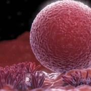Αποκατάσταση της δραστηριότητας των ωοθηκών και εγκυμοσύνη μετά από μεταμόσχευση ωοθηκικού ιστού: μια ανασκόπηση 60 περιπτώσεων επανεμφύτευσης ωοθηκικού ιστού