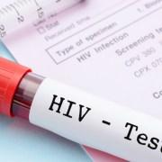 Η σπάνια γενετική μετάλλαξη που αντιστέκεται στον ιό του AIDS Δημιουργεί «φυσική ανοσία», σύμφωνα με νέα ερευνητικά δεδομένα