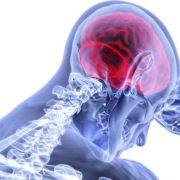 Σύστημα τεχνητής νοημοσύνης εντοπίζει όγκους στον εγκέφαλο