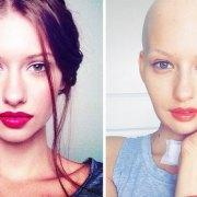 Elizaveta Bulokhova : της συνέστησαν να κάνει έκτρωση για να υποβληθεί σε χημειοθεραπεία