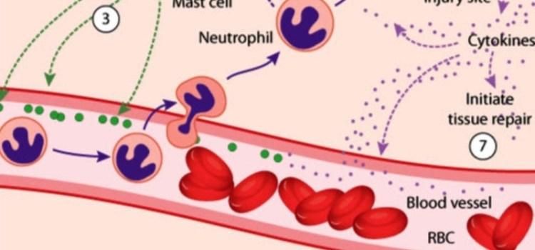 Ρευματοειδής Αρθρίτιδα & Οστεοαρθρίτιδα