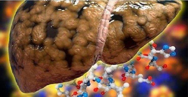 Como Tratar Gordura no Fígado