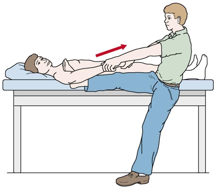 Лечение вывиха плеча и реабилитация