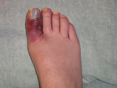 Ушиб пальца на ноге Симптомы первая помощь лечение