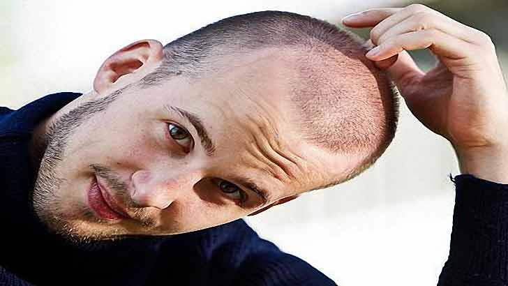 How to stop hair loss in men