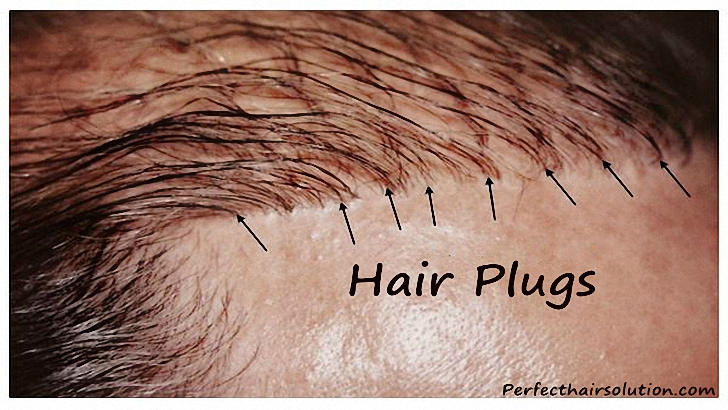What Are Hair Plugs ?
