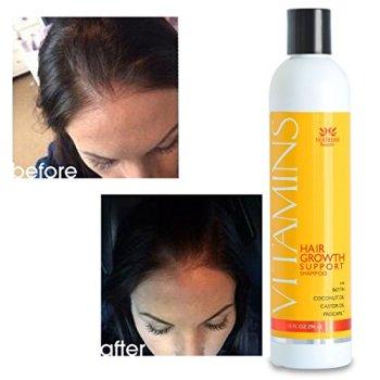 biotin hair loss shampoo