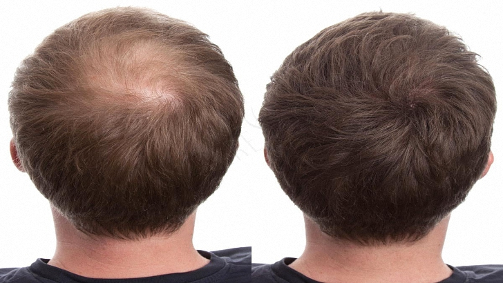 Balding Spray On Hair Color For Hair Loss