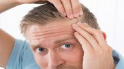 Minoxidil Receding Hairline Treatment