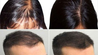 Natural Hair Regrowth Products