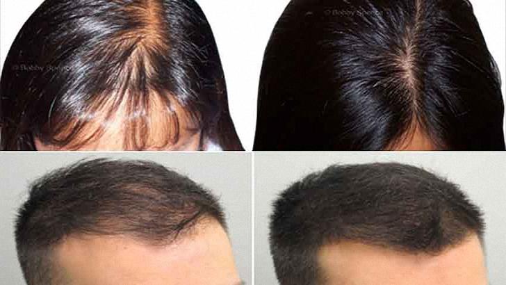 Natural Hair Regrowth Products