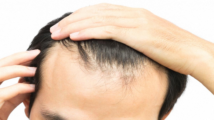 Receding Hairline | Baldness and Frontal Hair Loss Treatment