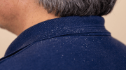 Can Dandruff Cause Hair Loss?