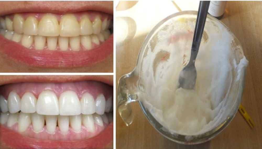 Image result for Use THIS One Ingredient to Whiten Your Teeth and Remove Plaque at Home