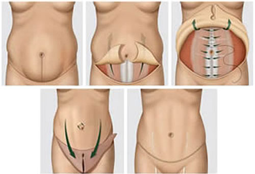 Ilustração mostra como são feitas as incisões (Foto: Divulgação).