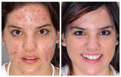 Pomada para Acne D'Acné: antes e depois