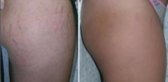 Stretchmark intracel