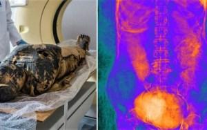 Encuentran por primera vez una momia egipcia embarazada