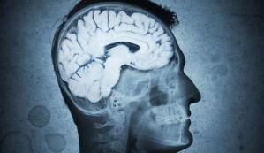 Elon Musk asegura que un parásito cerebral está manipulando nuestras vidas