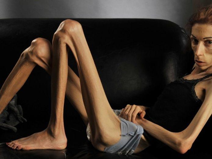 paciente con anorexia nerviosa